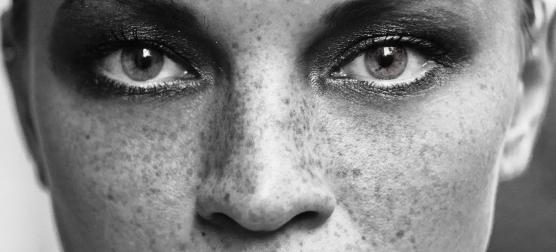 manchas, clareadores, facial (6)